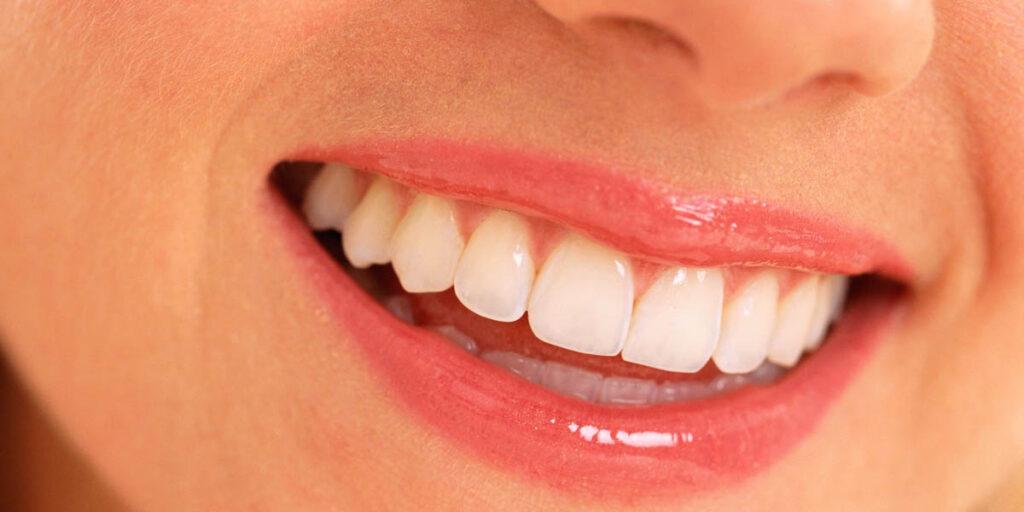 La fluorosis o manchas en los dientes. ¿A qué se debe?