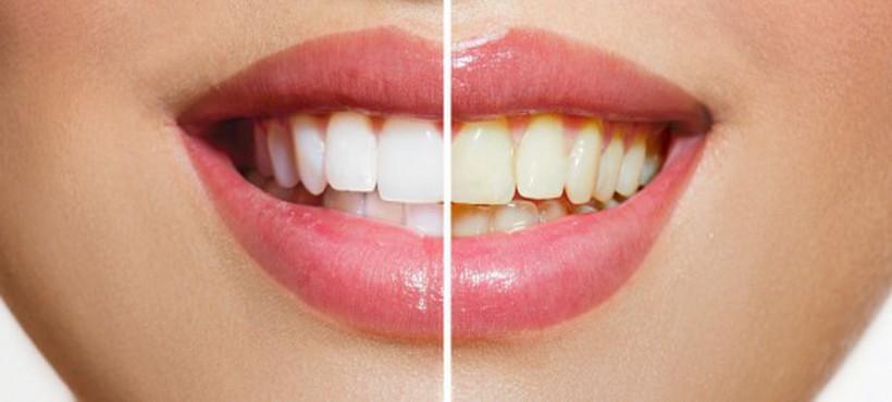 cambiar forma dientes